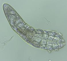 folliculorum